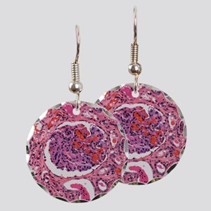 Inflamed kidney, light microg Earring Circle Charm