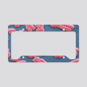 Human chromosomes, SEM License Plate Holder