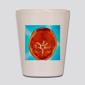 Brain and arteries, coloured CT scan Shot Glass