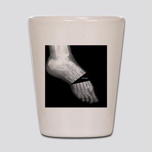 broken_foot_xray_oh_snap Shot Glass
