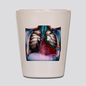 Heart pacemaker, X-ray Shot Glass