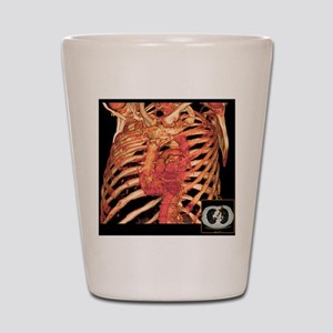 Ribcage and blood vessels, 3D CT scan Shot Glass