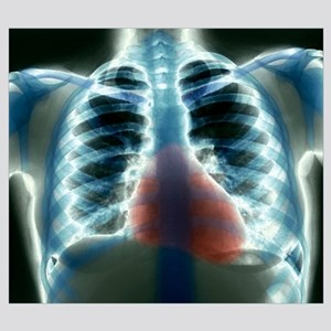 Healthy heart and lungs, X-ray