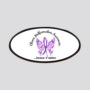 Chiari Butterfly 6.1 Patches