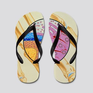 Artwork of the mechanism of rheumatoid  Flip Flops