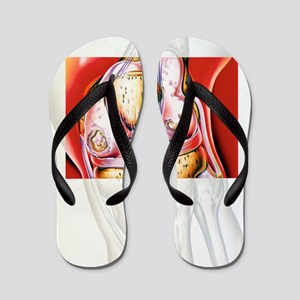 Artwork showing rheumatoid arthritis of Flip Flops
