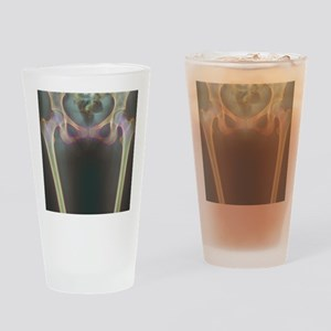 Hip bones, X-ray Drinking Glass