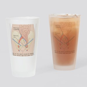 Inguinal hernia, artwork Drinking Glass