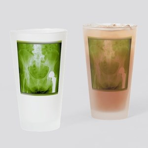 Total hip replacement, X-ray Drinking Glass