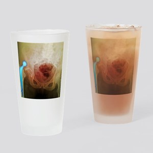 'Dislocated hip prosthesis, X-ray' Drinking Glass