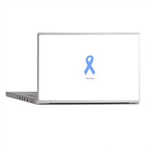 Light Blue: Strong Laptop Skins
