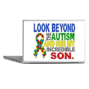 Look Beyond 2 Autism Son Laptop Skins