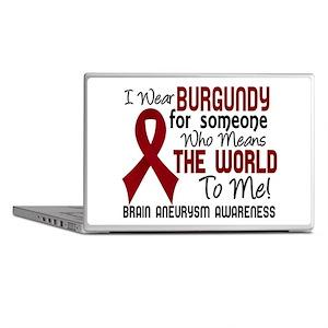 Brain Aneurysm MeansWorldToMe2 Laptop Skins