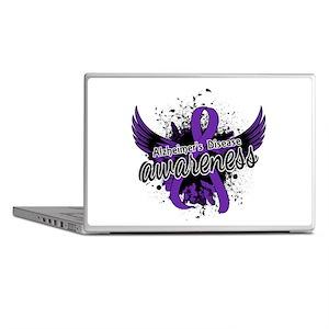 Alzheimer's Awareness 16 Laptop Skins