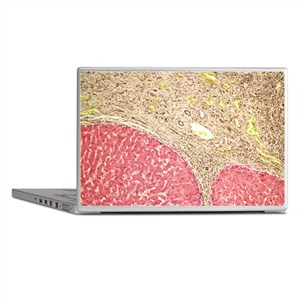 Liver tissue cirrhosis, light microgr Laptop Skins