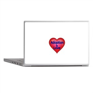 Adoption is love Laptop Skins