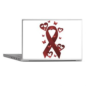 Red Awareness Ribbon Laptop Skins
