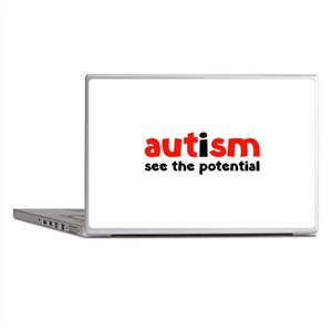 Autism See The Potential Laptop Skins