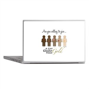 The Gift of Life Laptop Skins