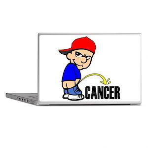 Piss On Cancer -- Cancer Awareness Laptop Skins