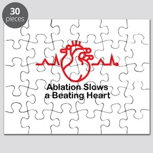 Ablation Slows A Beating Heart ™ 02 Puzzle