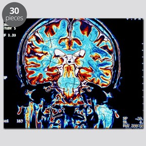 Coloured MRI scans of the brain, coronal view - Pu
