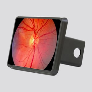 Normal retina of eye Rectangular Hitch Cover