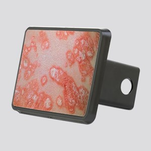 Psoriasis (plaque type) - Hitch Cover
