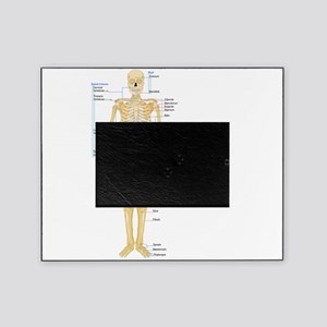 Skeleton chart Picture Frame