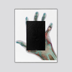 Arthritic hand, X-ray Picture Frame