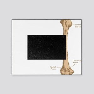 Humerus Picture Frame
