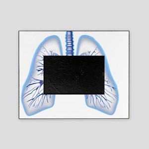 Bronchial tree, computer artwork Picture Frame