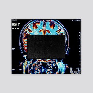 Coloured MRI scans of the brain, cor Picture Frame