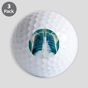 Pneumothorax, X-ray Golf Balls