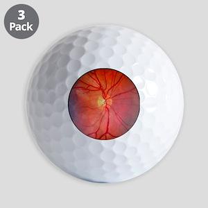 Normal retina of eye - Golf Balls
