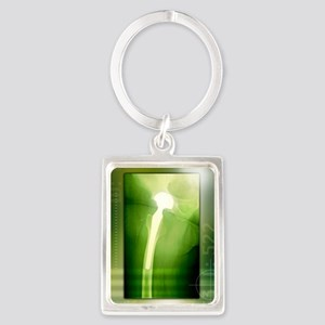 Hip replacement, X-ray Portrait Keychain