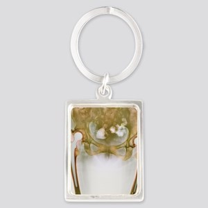 Double hip replacement, X-ray Portrait Keychain