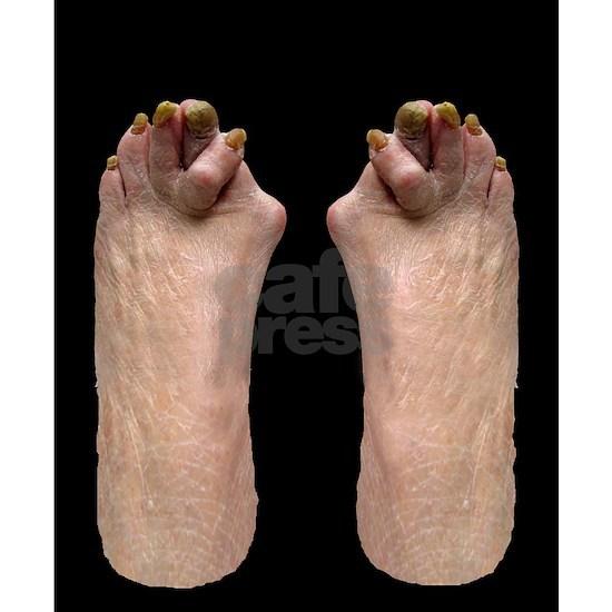 Ugly Feet Flip Flops