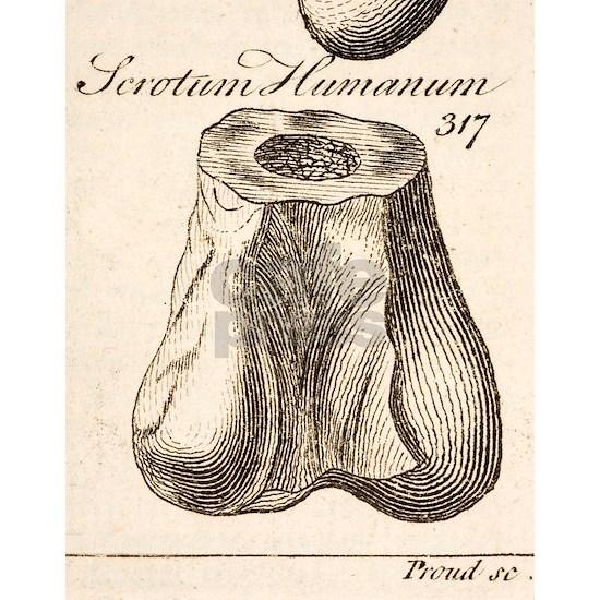 1763 Dinosaur bone misidentified scrotum