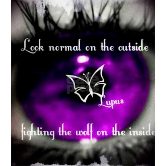 Through the eye of lupus