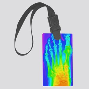 Normal left foot, X-ray Large Luggage Tag