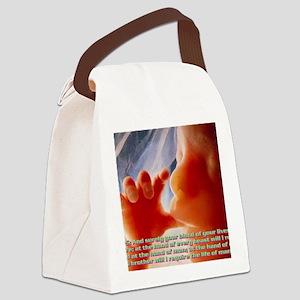 Genesis9@5(large framed print) Canvas Lunch Bag