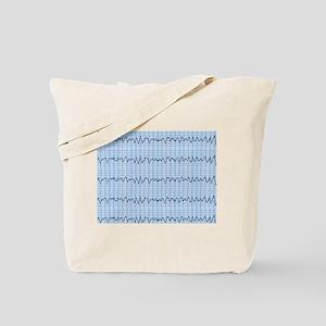 Cardiac V-Fib 2 Tote Bag