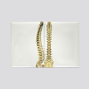 AP-Lat Spine Magnets