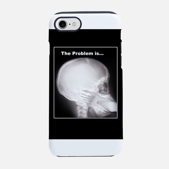 Foot in Mouth X-ray iPhone 7 Tough Case