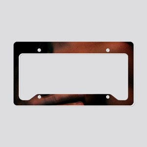 Simple and Direct by LG Willi License Plate Holder