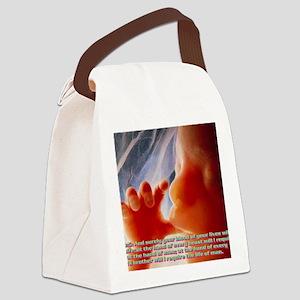 Genesis9@5(wall calendar) Canvas Lunch Bag