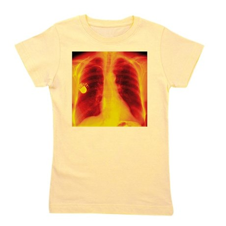 Heart pacemaker, X-ray - T-Shirt