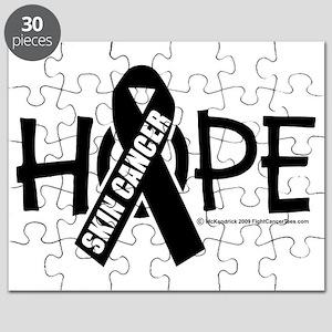 Skin-Cancer-Hope Puzzle