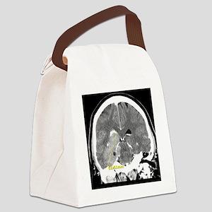 dadbrain2 Canvas Lunch Bag